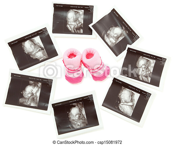 Group of 3D/4D Ultrasound images around a pair of pink baby booties. - csp15081972