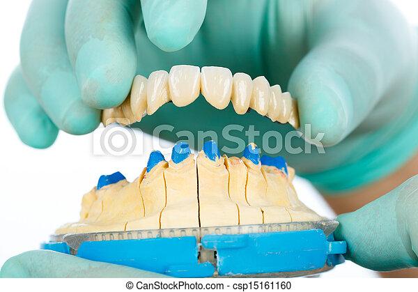 Porcelain teeth - dental bridge - csp15161160