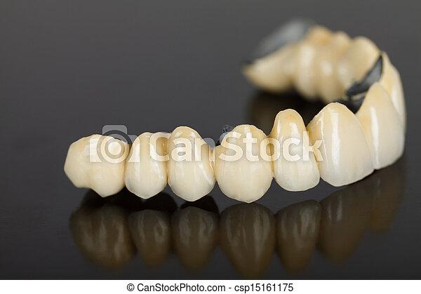 Porcelain teeth - dental bridge - csp15161175