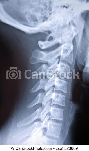 X-ray - csp1523689