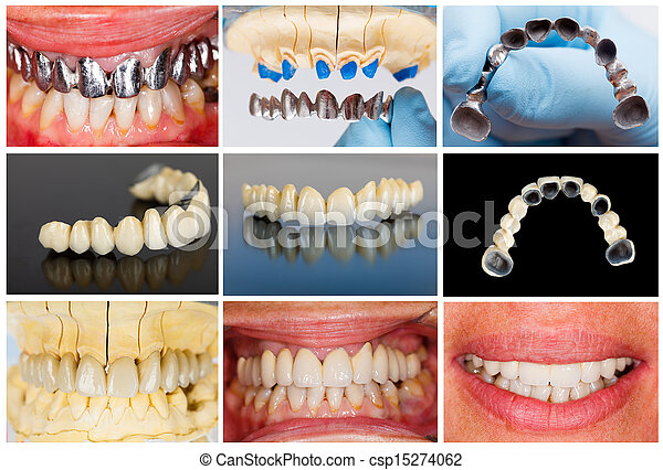 Technical steps of dental bridge - csp15274062