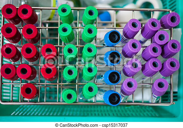 set of colorful empty blood sample tubes
