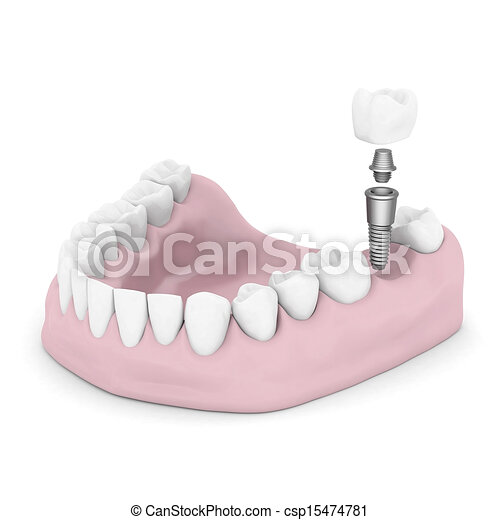 Dental implants - csp15474781