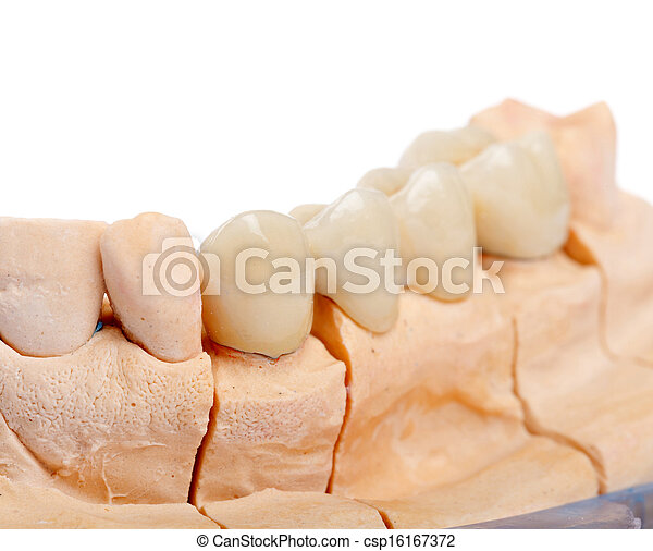 Teeth rehabilitation - csp16167372