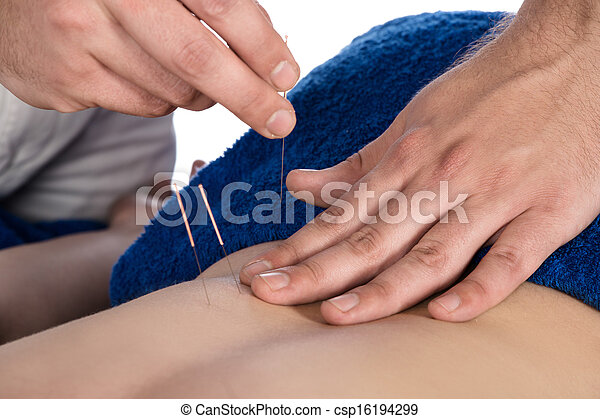 Physiotherapist doing accupuncture - csp16194299