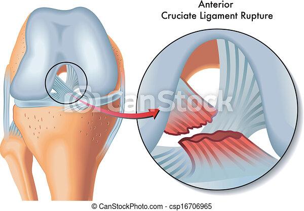 Anterior cruciate ligament rupture - csp16706965