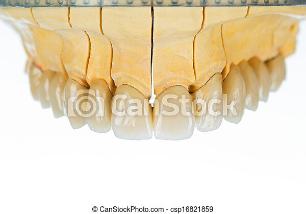 Ceramic teeth - dental bridge - csp16821859