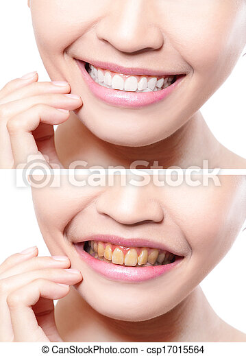 woman teeth before and after whitening - csp17015564
