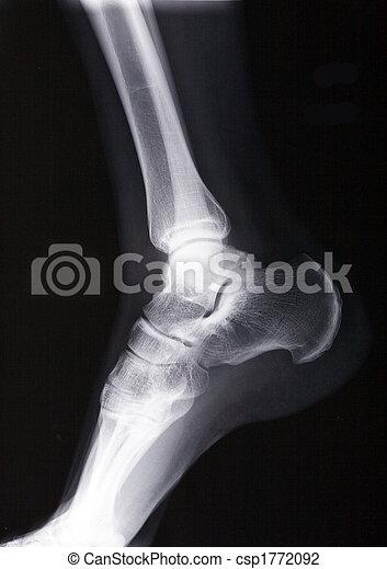 ankle xray - csp1772092