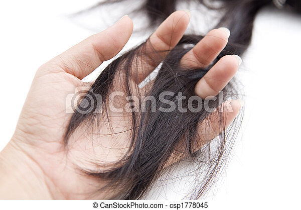 hair loss - csp1778045