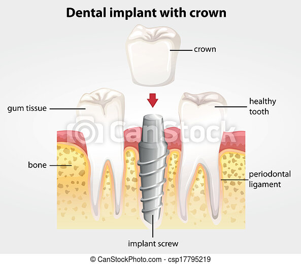 Dental implant with crown - csp17795219