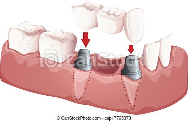 Dental bridge - csp17795373