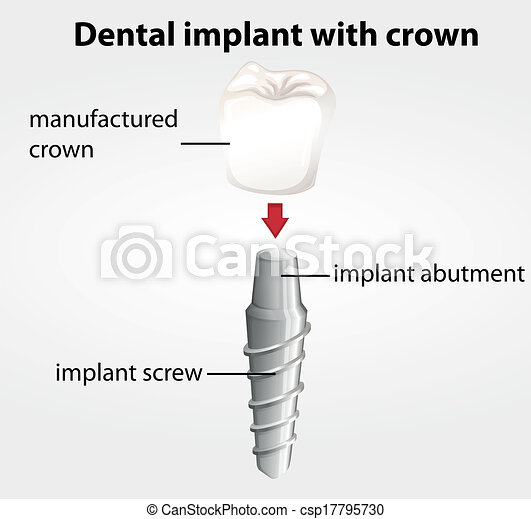 Dental implant with crown - csp17795730