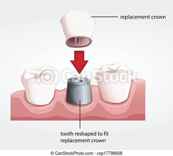 Dental crown procedure - csp17796608