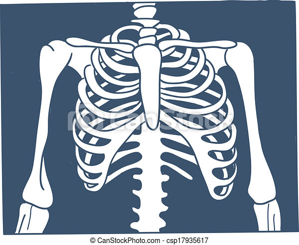 x Ray Line Drawing Thorax X-ray Picture