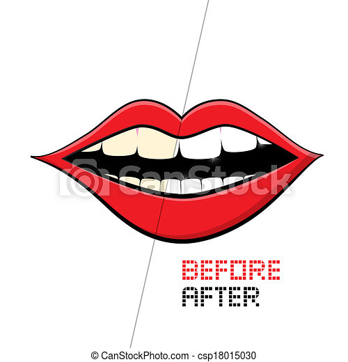 Vector Mouth on White Background. Cleaning Teeth, Before and After.  - csp18015030