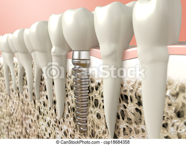 Dental implant - csp18684358