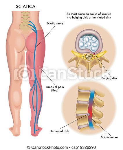sciatica - csp19326290