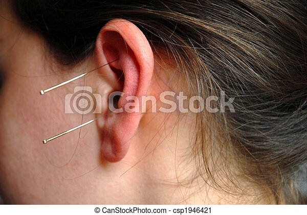 Alternative Therapy: acupunture needles - csp1946421