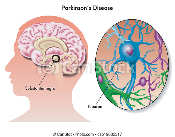 parkinsons disease research paper Research within librarian-selected research topics on diseases and disorders  from the questia online library, including full-text online books, academic journals .