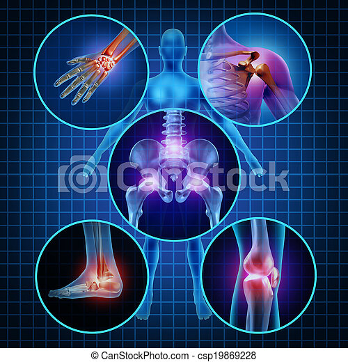 Painful Joints - csp19869228