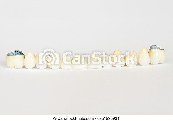 Porcelain crown and bridge (dentistry), dental plate, dentures - csp1990931