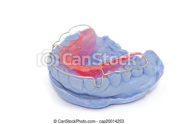 dental gypsum models and dental brace (Retainer) - csp20014253