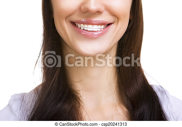 Beautiful smiling girl with retainer for teeth isolated - csp20241313