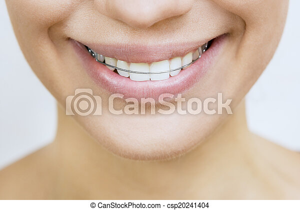 Retainer for teeth - Beautiful smiling girl with retainer for te - csp20241404