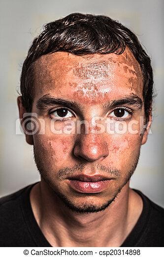 Stock fotografien von sonnenbrand haut mann gesicht sonnenbrand haut csp20314898 - Brulure coup de soleil visage ...