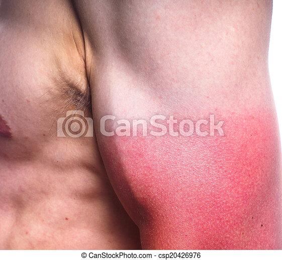 Sunburn biceps of a male
