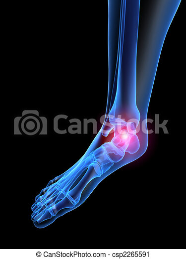pain in foot - csp2265591
