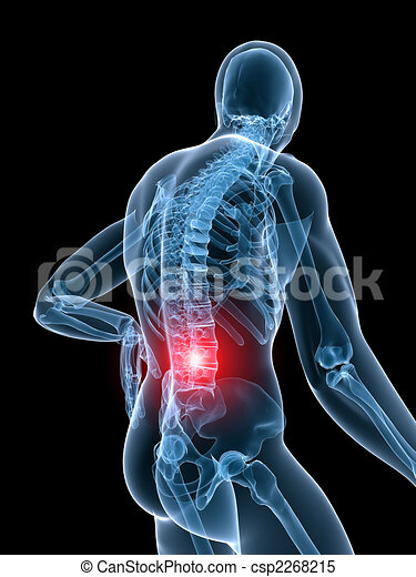 painful spine - csp2268215