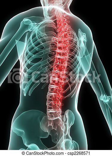painful spine - csp2268571