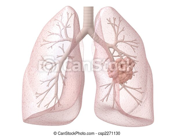 lung cancer - csp2271130