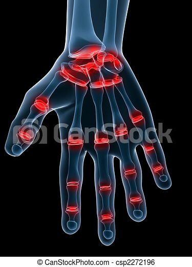 painful hand joints - csp2272196