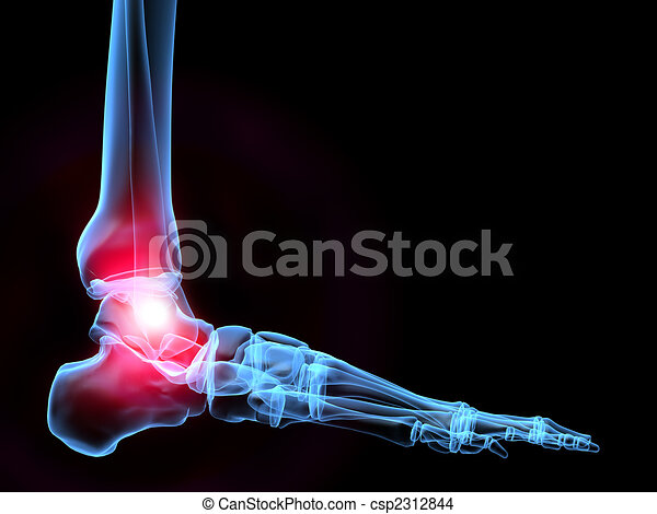 painful ankle - csp2312844