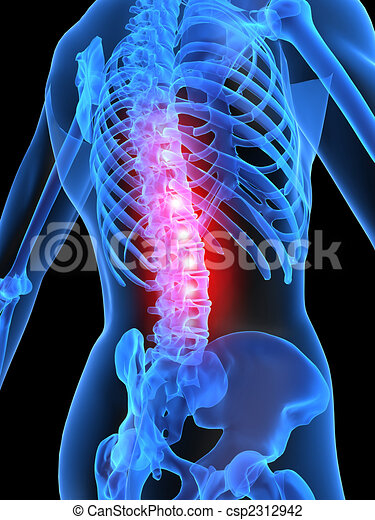 painful spine - csp2312942