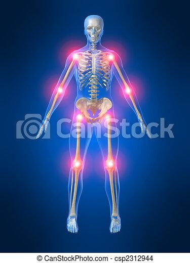 painful joints - csp2312944