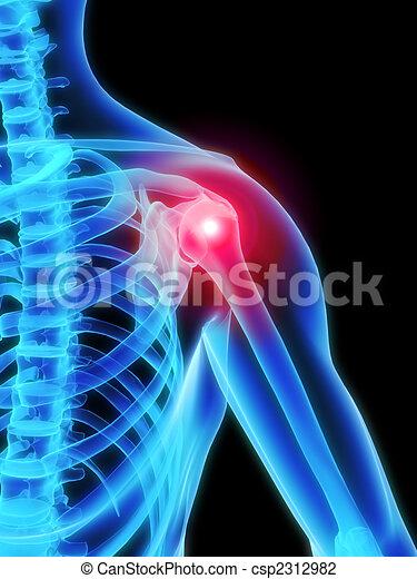 painful shoulder - csp2312982