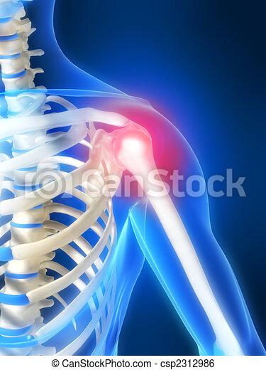 painful shoulder - csp2312986