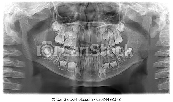 Panoramic dental X-Ray of child - 7 years - csp24492872