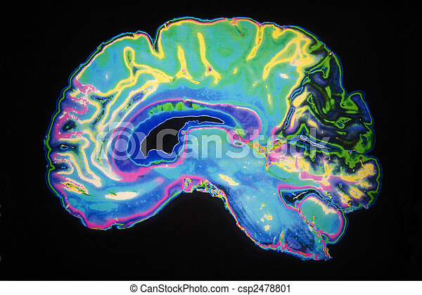 Coloured MRI Scan Of Human Brain - csp2478801