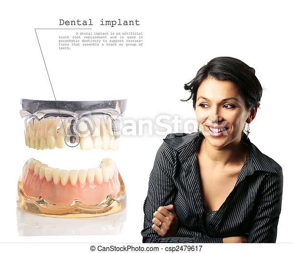 dentale, impianto - csp2479617