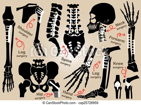 Collection of Orthopedic surgery ( Internal fixation by plate and screw )( skull , head , neck , spine , sacrum , arm , forearm , hand , elbow ,shoulder , pelvic , thigh , hip , knee , leg , foot ) - csp25726959