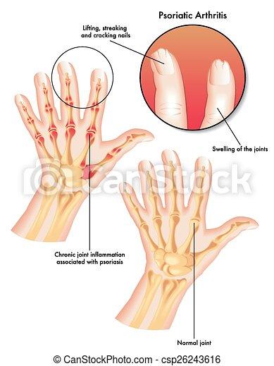 psoriasis in english
