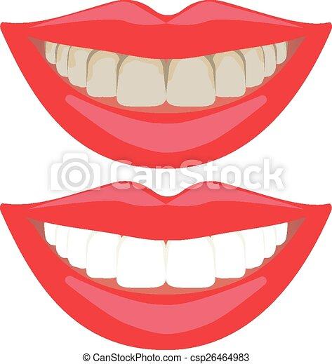 Teeth Whitening Comparison Teeth Whitening Comparison