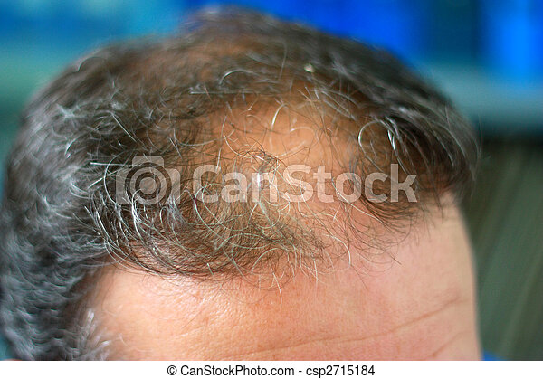 Male head with hair loss symptoms front side - csp2715184