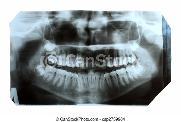 dental x-ray picture of jaw - csp2759984