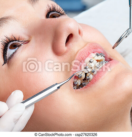 Extreme close up of hands working on dental braces. - csp27620326